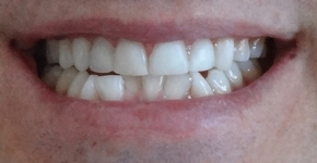 DentoAmerica_Dentist_Cleaning_Whitening_Repaired